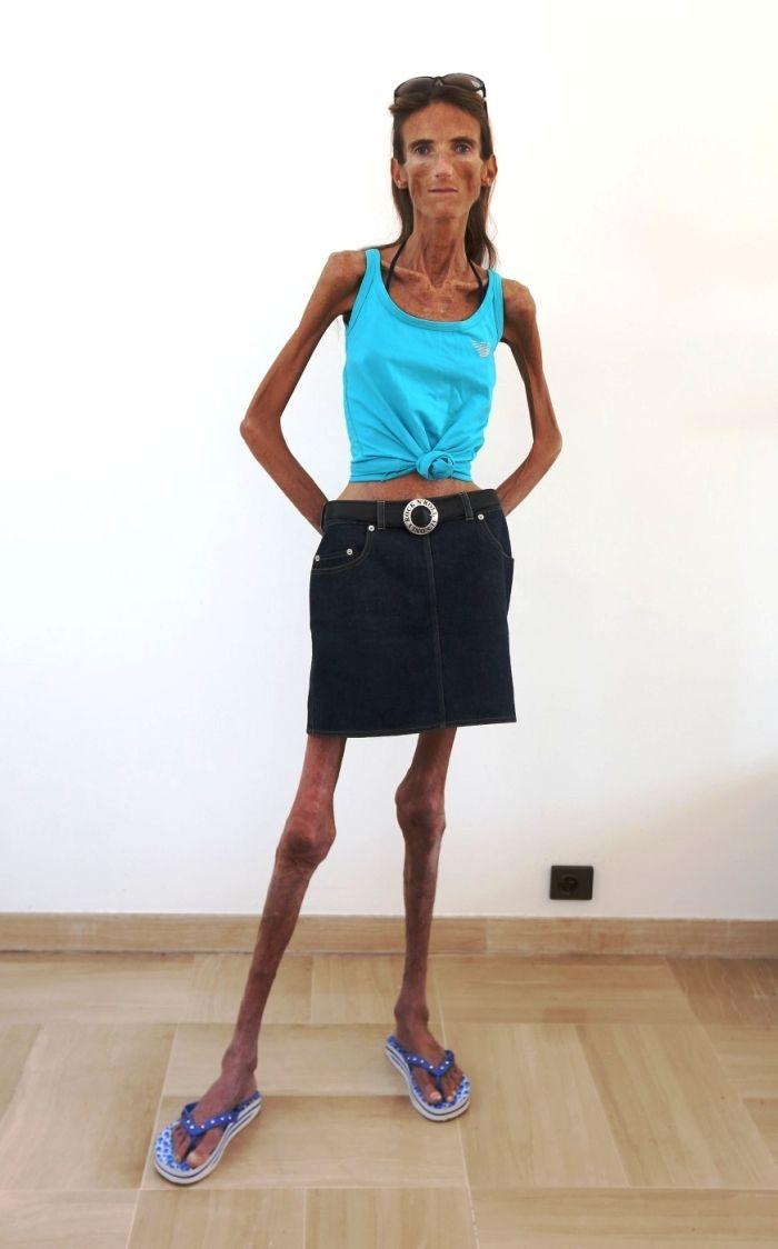 самые худые люди - 3