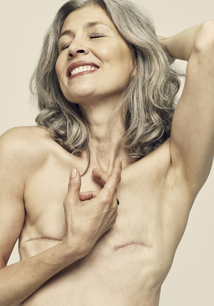 Total Mastectomy