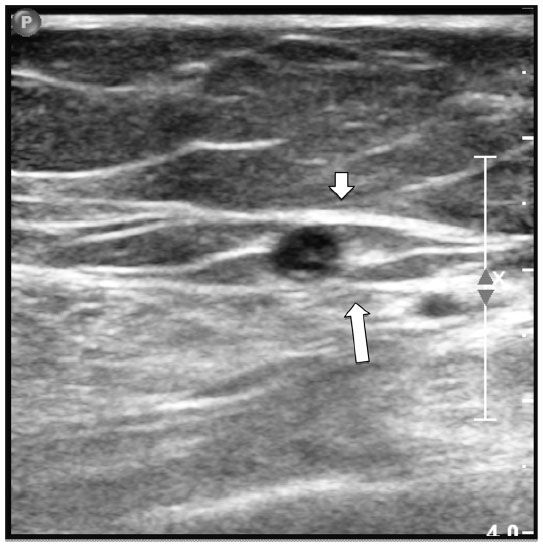 """Gray scale image of the great saphenous vein (GSV) in the thigh.  The GSV is identified by its location between the superficial (short arrow) and deep (long arrow) fascia. This appearance has been referred to as """"Cleopatra's Eye."""""""