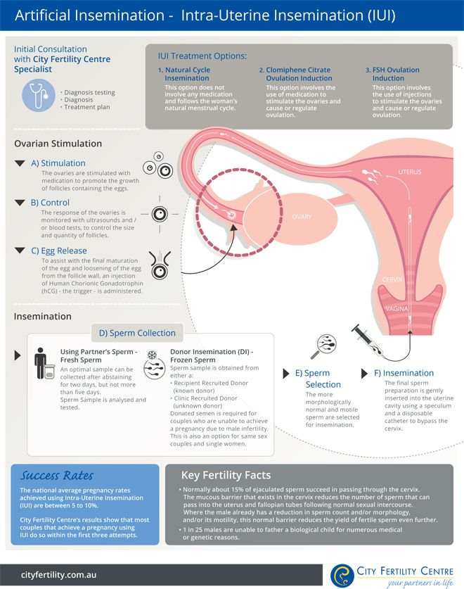 Artificial Insemination - City Fertility Centre's step by step guide to Intra-Uterine Insemination (IUI) #fertilitytreatment #cityfertilitycentre #infographic