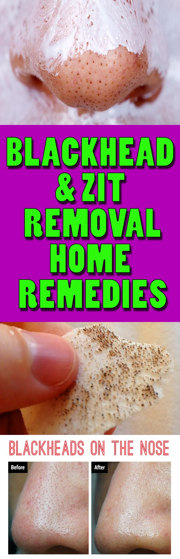 Two ingredients are all you need to get rid of blackheads and zit's forever  #blackheads #clean #HOWTO #homeremedies