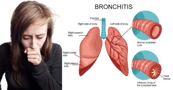 how to clear bronchitis naturally