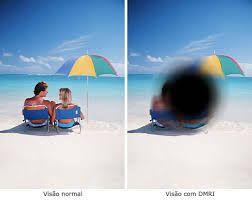 Novo tratamento para edema macular relacionado à idade (DMRI), edema macular diabético, oclusões venosas da retina e neovascularização miópica. Visite nosso site em www.ibol.com.br e acesse reportagem no Centro de Estudos. #DMRI #edemamacular #oftalmologia #olhos #diabetes