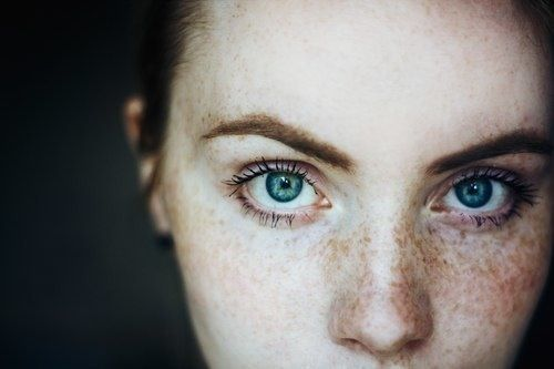 Intense, freckled, blue eyes, dappled