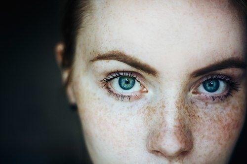 Intense, freckled, blue eyes, dappled