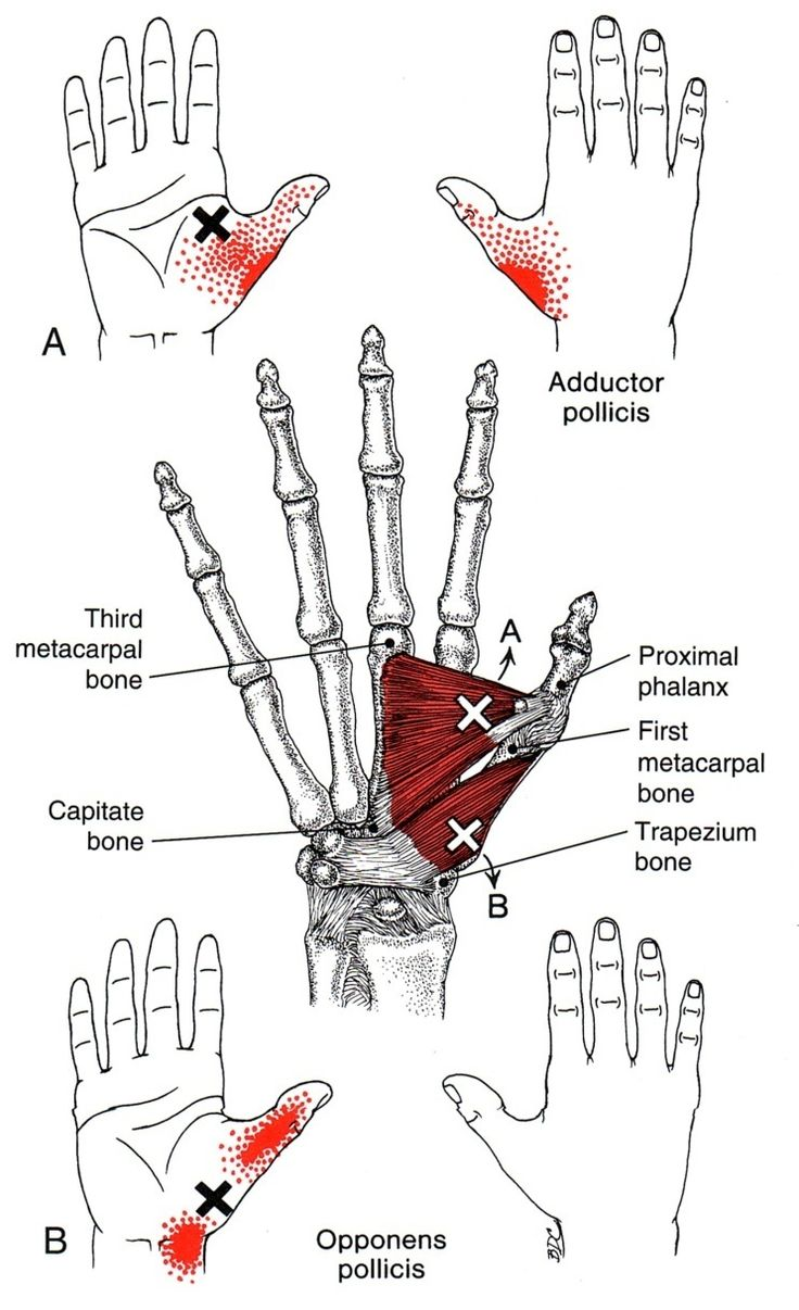 Handwurzelmuskel | The Trigger Point & Referred Pain Guide