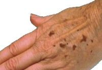 Homemade age spot remover. Has many other remedies