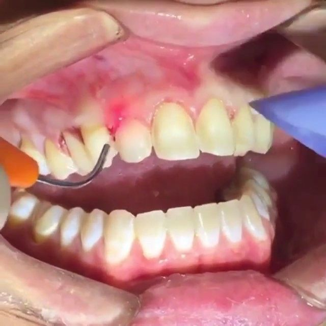 This video shows how composite veneers are directly made on the patient. These are different than porcelain veneers in that there is no waiting time for the lab: they are made the same day! Composite veneers are also more affordable than porcelain veneers. Beautiful results! Credit: @rosswnashdds   Shop link can be found in our BIO: @TheMedicals   We Ship Worldwide      #teeth #dental #odontologia #dentistry #braces #dentalschool #dentalassistant #dentalhygienist #dentalhygieneschool…