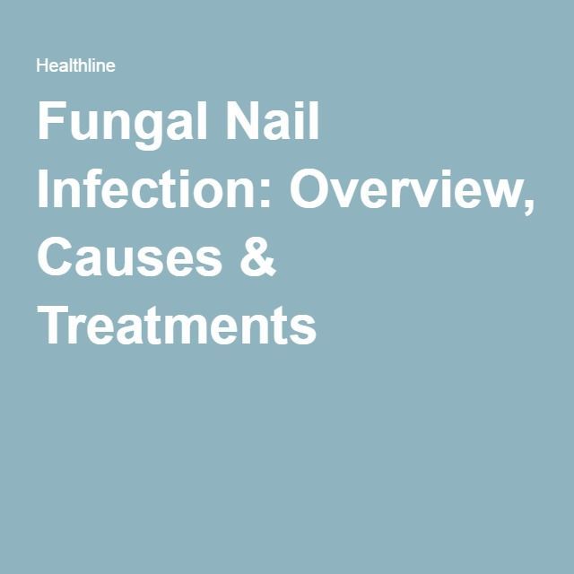 Fungal Nail Infection: Overview, Causes & Treatments