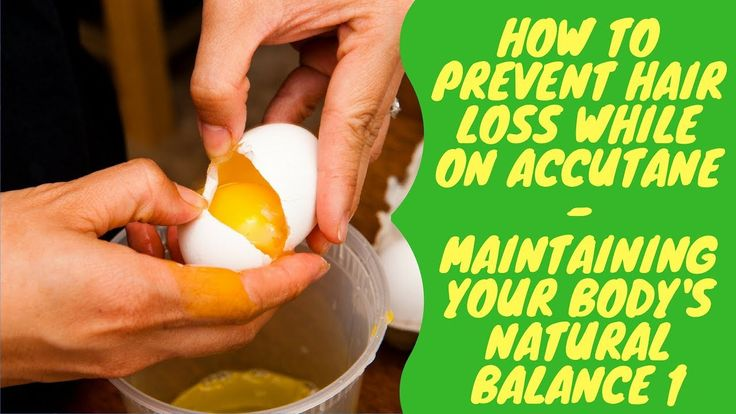 How to Prevent Hair Loss While on Accutane - Maintaining Your Body's Nat...