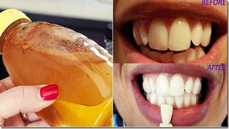 Diş Hekimleri Bunun Bilinmesini İstemiyor, Diş Beyazlatmak İçin En Hızlı...