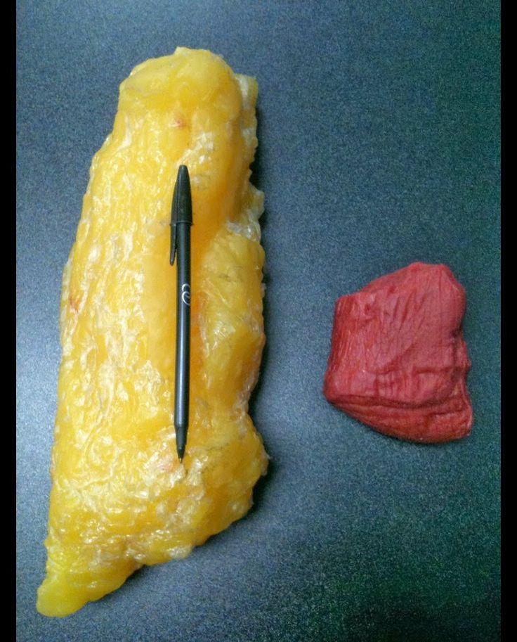 Peso: massa magra (músculo) x massa de gordura. ~ Natalia Kodama - nutricionista