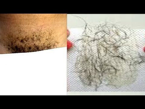 NO MORE SHAVE NO WAX REMOVE HAIR INSTANTLY RESULT IS PERMANENT - YouTube