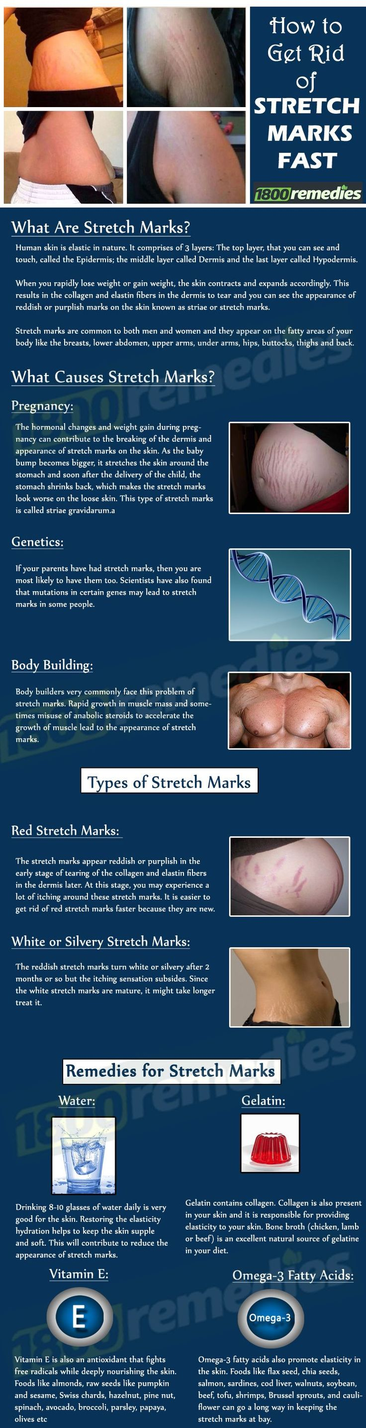 Are you desperate to know how to get rid of stretch marks? No worries now as there are many natural ways to get rid of stretch marks. You can either follow dietary or topical remedies or both to treat the stretch marks.