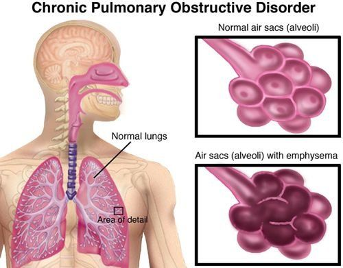 Sorry, Adult disease lung are absolutely