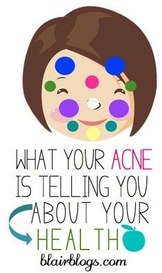 I had no idea that the location of facial acne is indicative of different health problems! This post helps to self-diagnose and cure acne. Nice Picture!