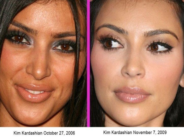 Kim antes y despues
