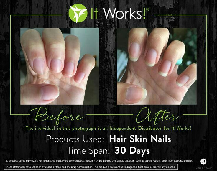 62 best It works: Hair Skin Nails & Results images on Pinterest ...