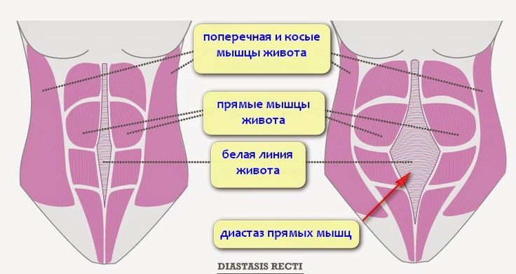 Диастаз прямых мышц живота после родов: комплексная система упражнений.