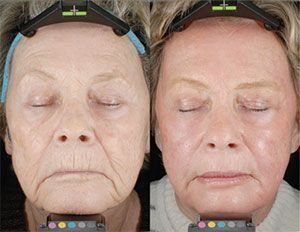 Facial resurfacing before and after opinion, you