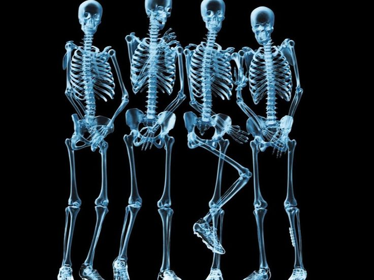 Funny Skeletons X-ray