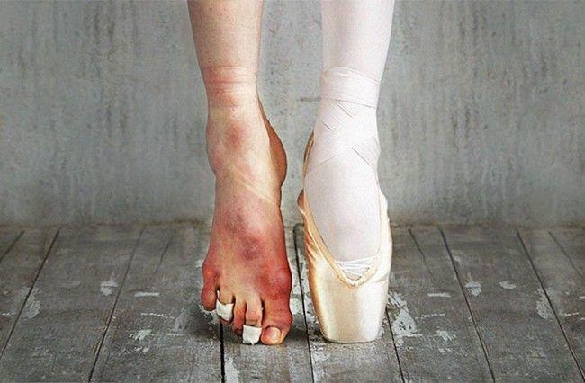 1106 Elképesztő fotók balett táncosnőkről és a balett mögött álló kemény küzdelemről