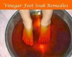 Vinegar Foot Soak - great for many feet issues: 1. Relieve Fatigued Feet 2. Treat Athlete's Foot 3. Solve Smelly Feet 4. Remove Warts And Callouses 5. Relieve Dry Toes 6. Treat Toenail Fungus 7. Regular Foot Care