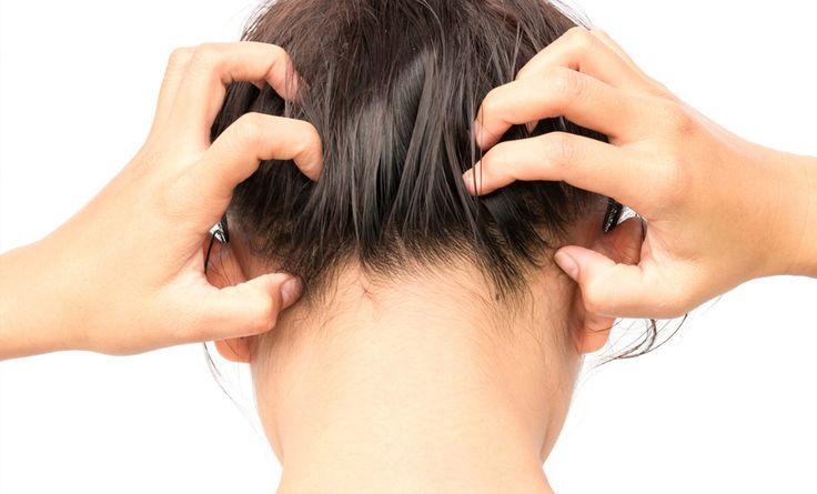 Rimedi naturali anti forfora: ecco 5 consigli per curare il fastidioso problema del cuoio capelluto con ingredienti di uso quotidiano!
