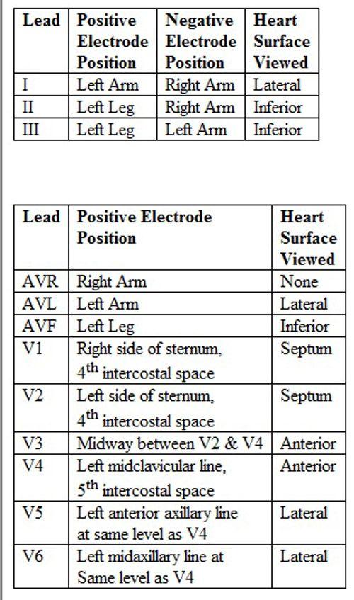 EKG lead placement