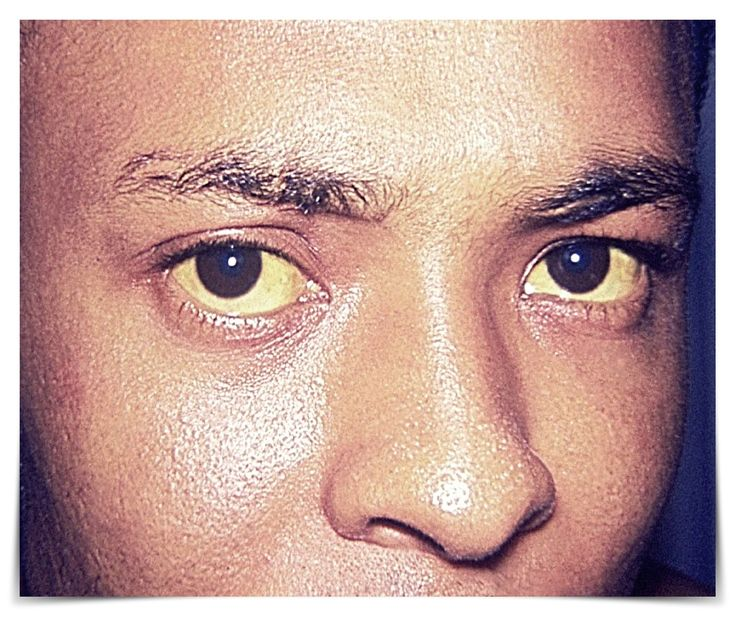 How to Cure Yellow Eyes Safe