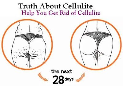Extreme weight loss diet & Fastest weight loss diet: Cellulite Gone! How To Get Rid of Cellulite Naturally in 28 day!