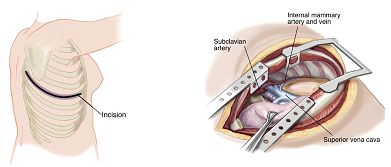 Image result for surgical approach thoracic cavity open thoracotomy postreolateral
