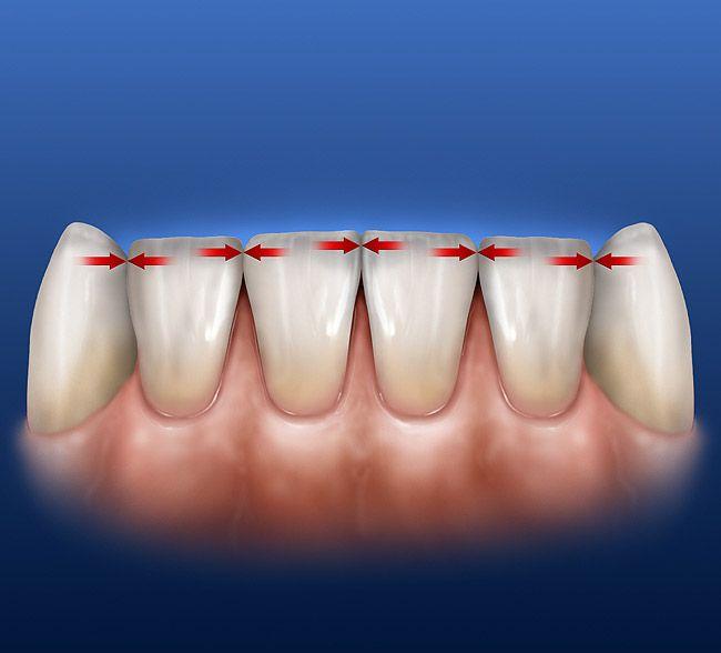 361 best Dental images on Pinterest | Teeth, Dental and Dental art