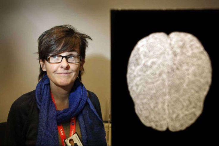Utbrändhet kan ge mätbara hjärnskador och din personlighet är helt avgörande för risken att du drabbas. Psykologen Agneta Sandström har publicerat en...