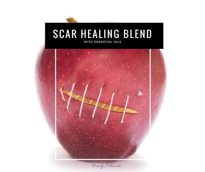 This Scar Healing Blend with essential oils is a great natural way to help make your scars less noticeable. Heal naturally with essential oils.