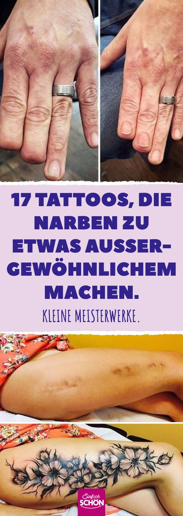 17 Tattoos, die Narben zu etwas Außergewöhnliche…