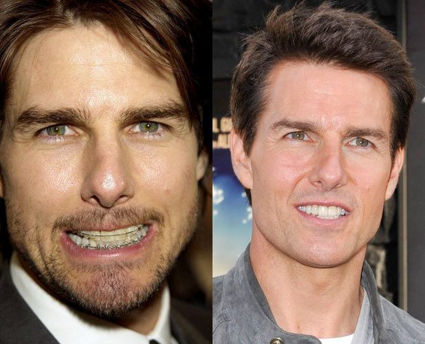 #Hollywood celebrity before and after in #braces. Even Tom Cruise had it…