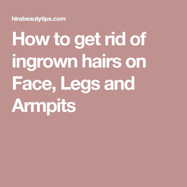 How to get rid of ingrown hairs on Face, Legs and Armpits