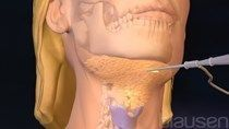 Chin Liposuction   Chin Liposuction The post Chin Liposuction appeared first on …