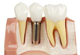 Only reputed dental implant clinic in kolkata, provide single tooth implant, full dental implants, artificial tooth implant at very affordable cost