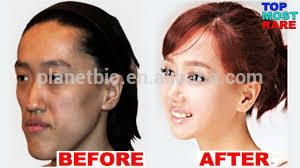 hyaluronic acid filler/hyaluronic acid syringe /dermal facial filler injections to buy