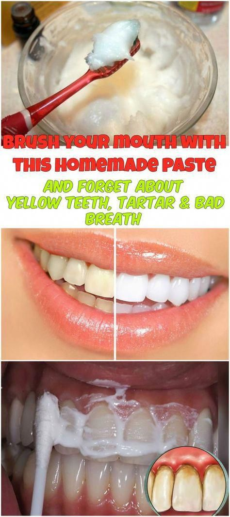 Homemade Toothpaste With Coconut Oil Turmeric And Peppermint To