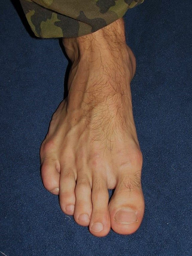 from Baylor gay men hairy feet