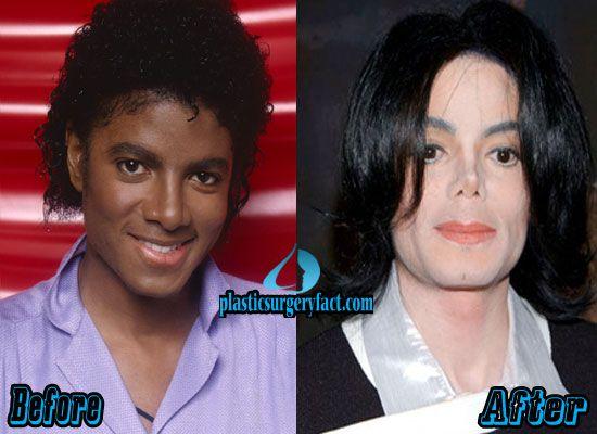 michael jackson plastic surgery gone wrong http