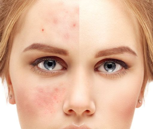 Rosacea: What it is and how to treat it. When it's more than just a rash