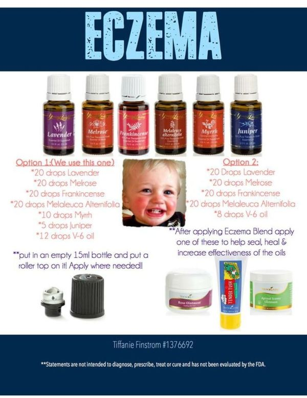Young Living Essential Oils: Eczema by annabelle