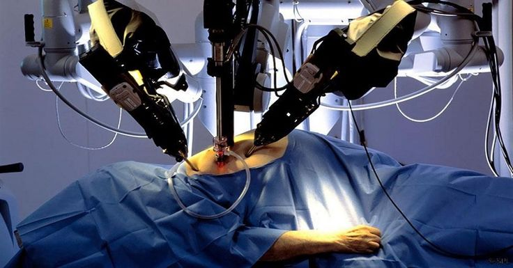 Should surgical robots replace human surgeons?: Here is what the Experts say..