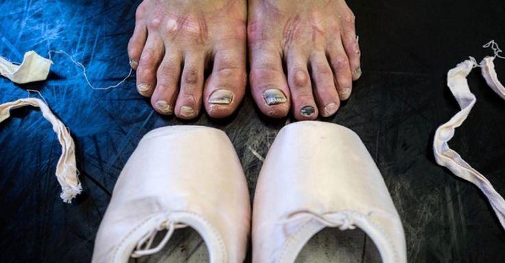 Diese Tänzerin ist wunderschön - doch ihre Füße zeigen die Strapazen des Berufs
