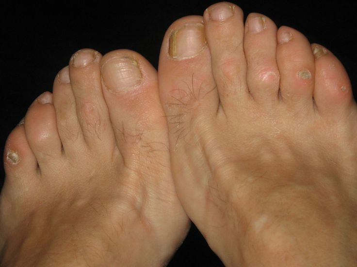 Treatments and Home Remedies for Corns Feet