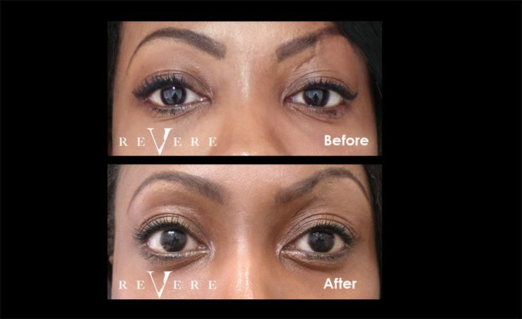 Ping by Revere Treatment - New Alternative to Eyelid Surgery. #eyes #eyelid #eyeopening #darkcircles #hooding #wrinkles #finelines #nonsurhical #crowsfeet #Ping #RevereClinics